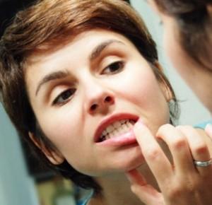 Десны кровоточат при чистки зубов