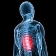 Защемление нерва в грудном отделе. Как сделать правильный диагноз недуга?