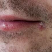 Какой мазью лечить герпес на губах? Выбор препарата.