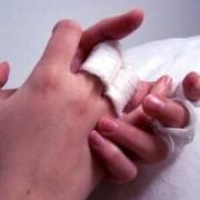 Как лечить экзему на руках в домашних условиях? Советы фармацевтов и знахарей.