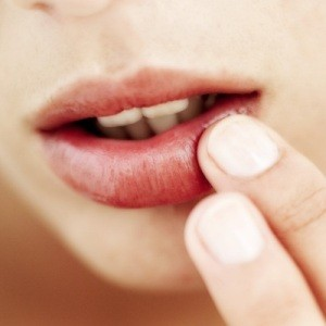 Как лечит заеды на губах