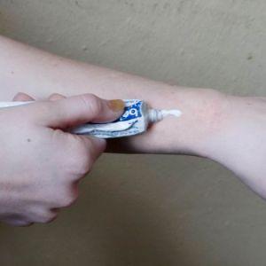 Лечение экземы