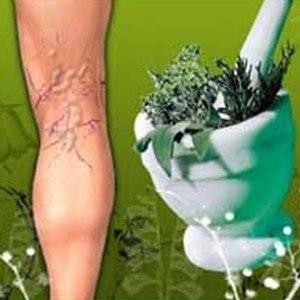 Лечение рожи на ноге народной медициной