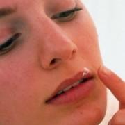 Простуда на губе – как быстро лечить недуг?