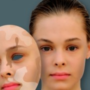 Чем и как лечить витилиго? Основные симптомы заболевания.
