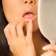 Герпес на губах – чем и как лечить распространенное заболевание?