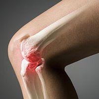 как излечить артроз коленного сустава