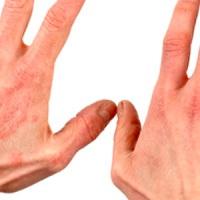 как лечить экзему на руках