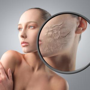 причины сухости кожи тела