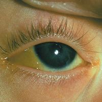 симптоматика гепатита у женщин