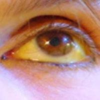 симптомы гепатита у женщин
