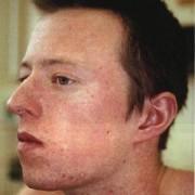 Корь – основные симптомы и лечение заболевания у взрослых.