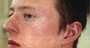 симптомы кори у взрослых