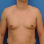 Что такое гинекомастия у мужчин и какие методы лечения? Что советуют специалисты?