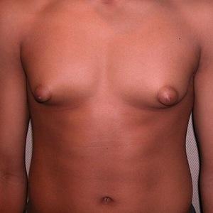 гинекомастия у