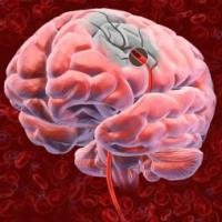 лечение ишемии головного мозга лечение