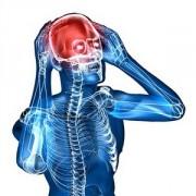 Как лечить сужение сосудов головного мозга? Что советуют врачи?